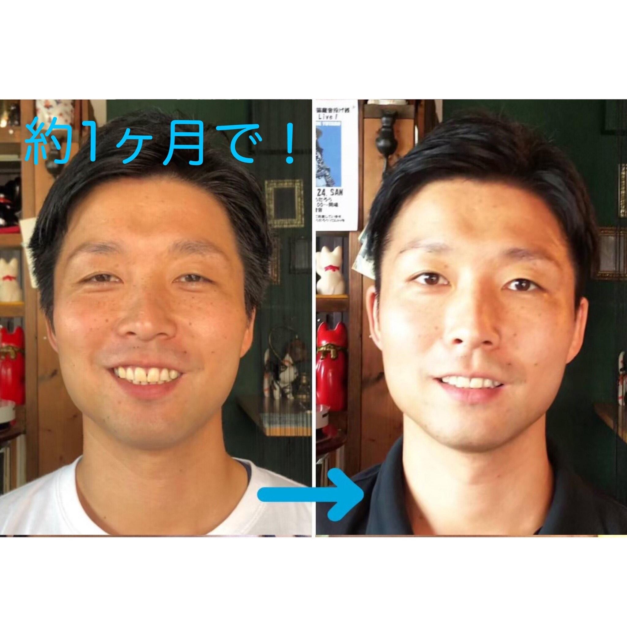 【夜・男性OK】顔も運動して若返らせる時代!顔ヨガ初級編