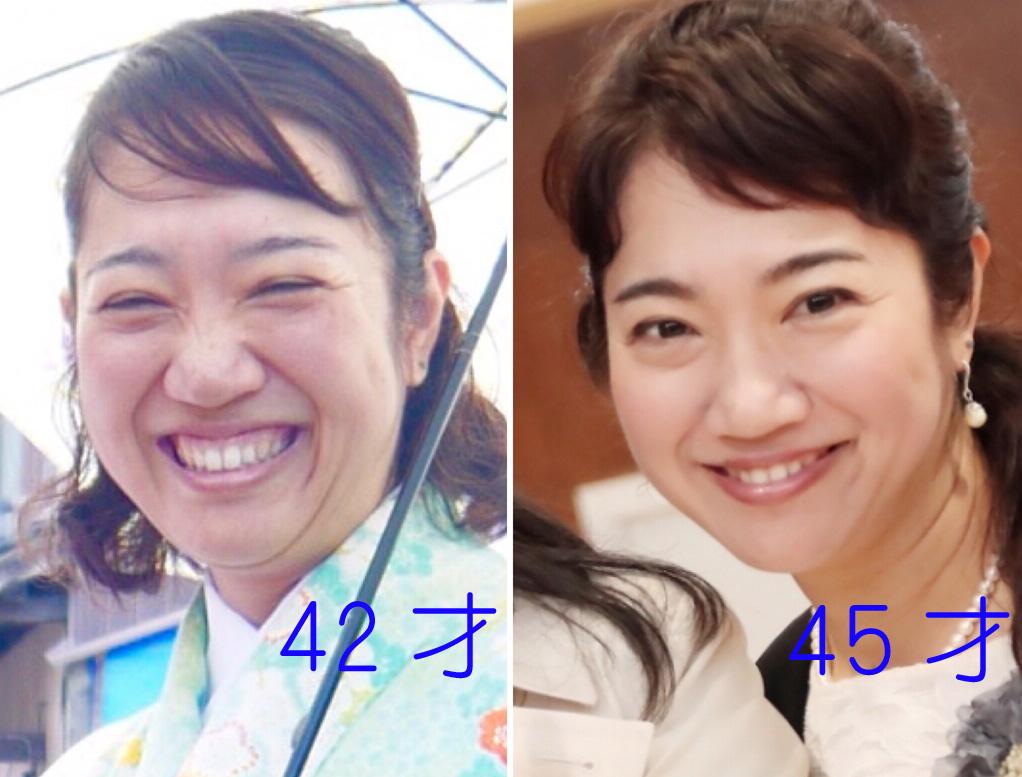 【昼】お顔の悩み解消!表情も変わる『顔ヨガ講座』